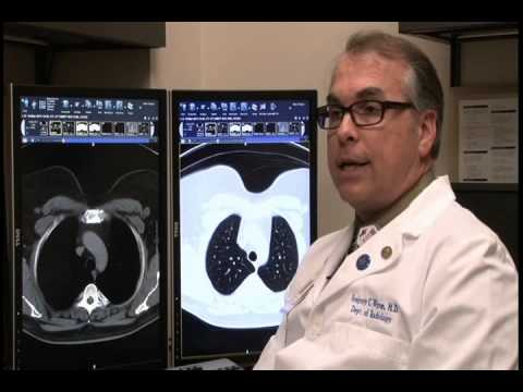 Low-Dose CT for Lung Cancer Screening - UF Health Jacksonville