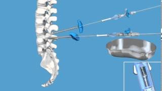 Vertebral Body Stenting - spine surgery, spine surgery hong kong