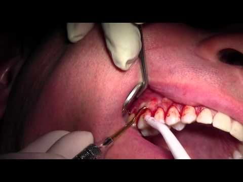 Alloderm Gingival Grafting #3-6 Sites, Tunneling Technique