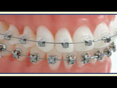 Damon Braces - Agnini Family Dental Center - Lakeland, FL