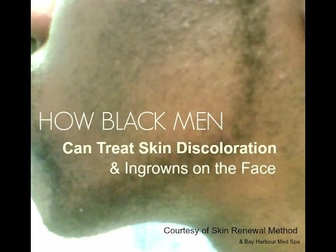 How Black Men Can Treat Skin Discoloration & Ingrowns ...