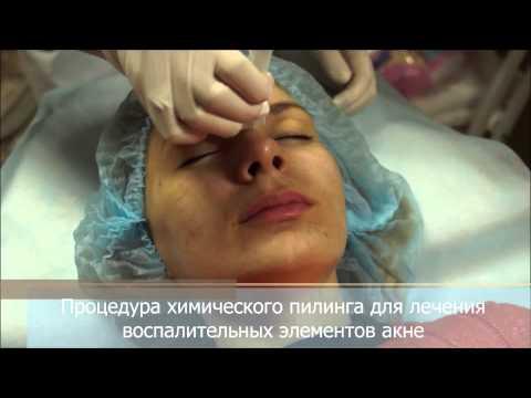 Лечение проблемной кожи лица пилингом