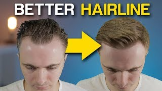 5 POWERFUL Receding Hairline Tricks To INSTANTLY Improve Your Look