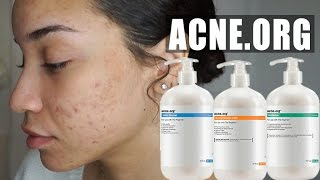 SKINCARE| New Skincare Routine - Acne.org Unsponsored Review