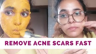 #removeacnescarsnaturallyHOW I HEALED MY ACNE SCARS NATURALLY