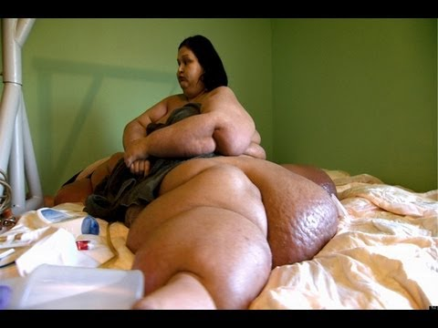 Fattest Woman In The World 1,036 lbs - Mayra Rosales