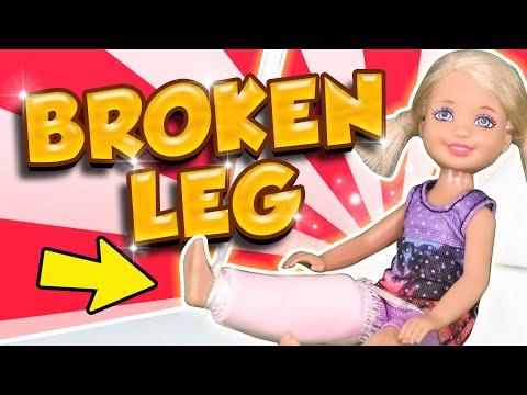 Barbie - Chelsea's Broken Leg
