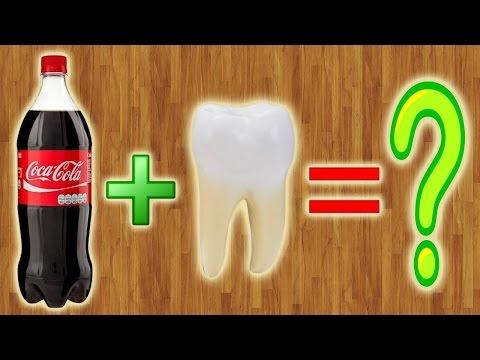 Что делает Coca-Cola с зубами???
