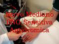 Elettromiografia Mediano Sensitiva Antidromica