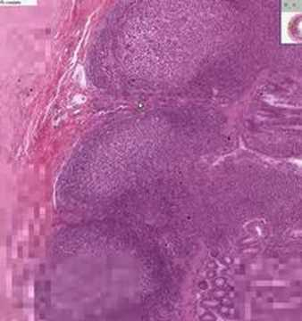 Shotgun Histology Small Intestine Ileum - YouTube