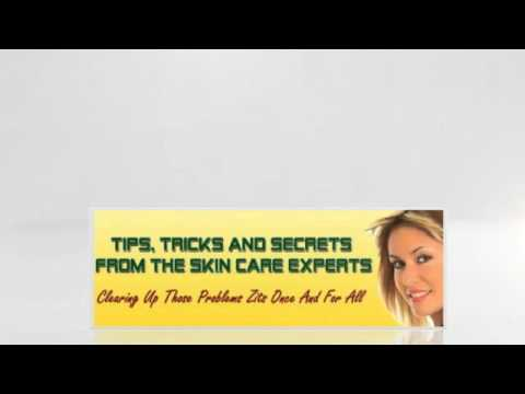 Tips For Getting Rid Of Acne - Remedy For Adult Acne