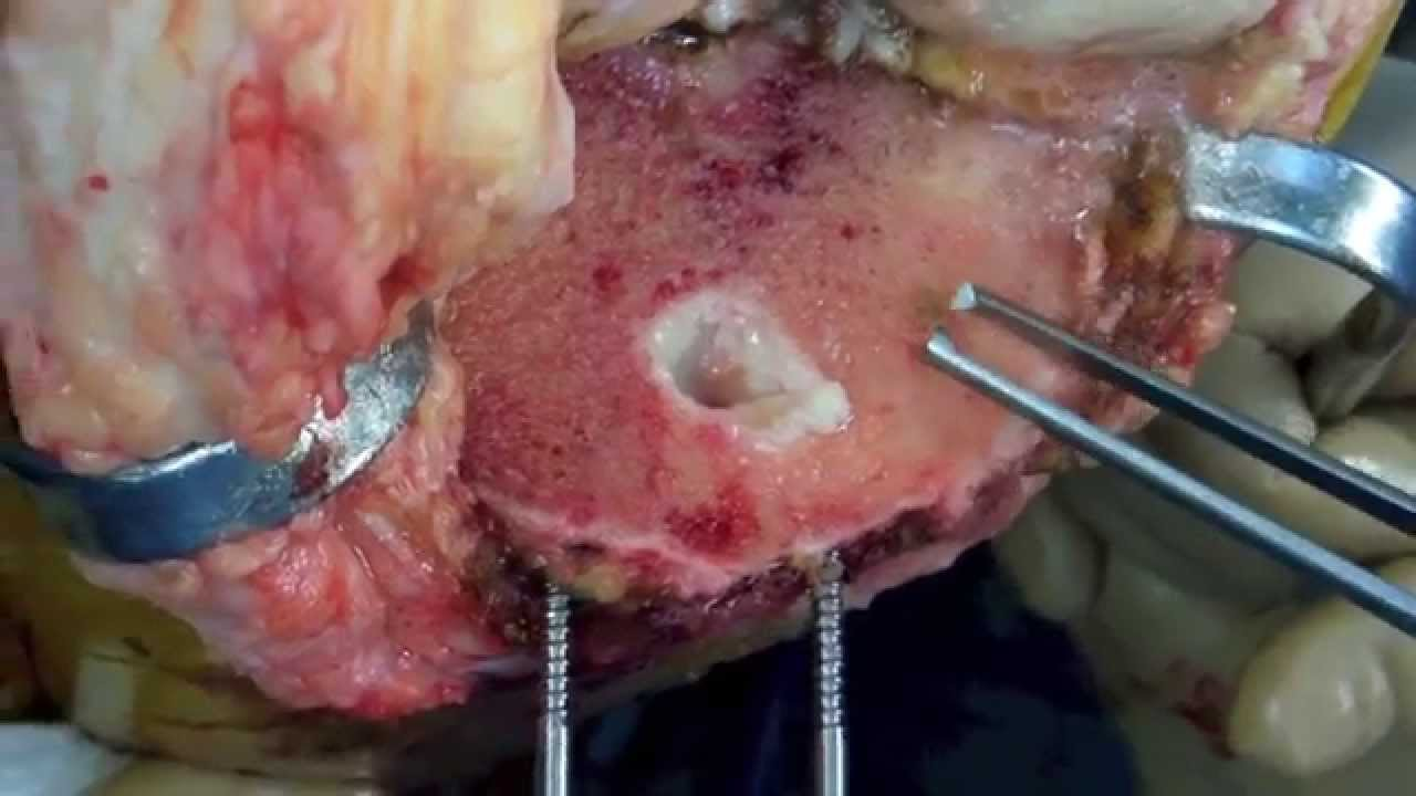 total knee replacement after an old acl reconstruction
