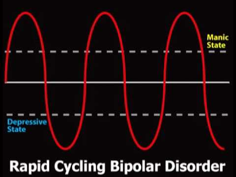 What is Bipolar Disorder? (Bipolar #1)