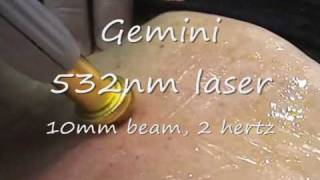 Gemini 532 nm laser.wmv
