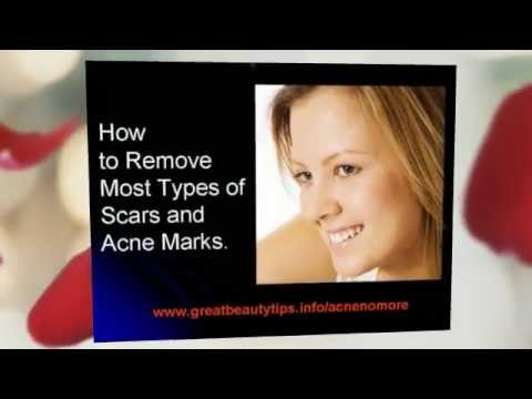How to get rid of acne quick. Tips on how to get rid of acne naturally fast.