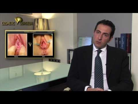 Hymenoplasty | Cosmetic V surgeon