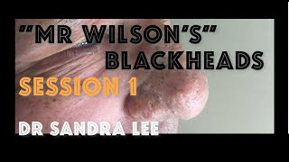 "Session 1: ""Mr Wilson"" Extracting large blackheads on the nose"