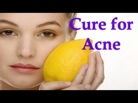 Nature's Essence - Cure For Acne