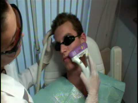 ACNE LASER TREATMENT ,  MIAMI : INSKIN
