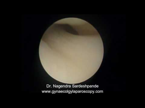 Difficult vaginoscopy entry in a upturned cervix thumbnail