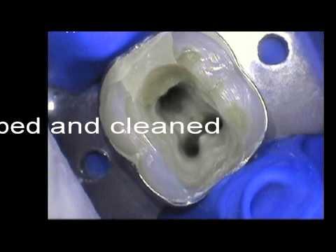Lower molar tooth restored by Vaswani Dental at Southgate, London N14 near N21,EN4,EN2,N13,N20,