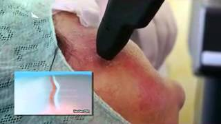 NeoGen Plasma Skin Regeneration 2013   Introduction x264 on Vimeo