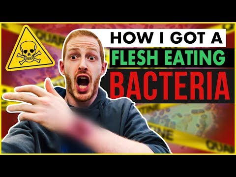 Kill a Flesh Eating Bacteria in 60 Days (Warning: Gruesome)
