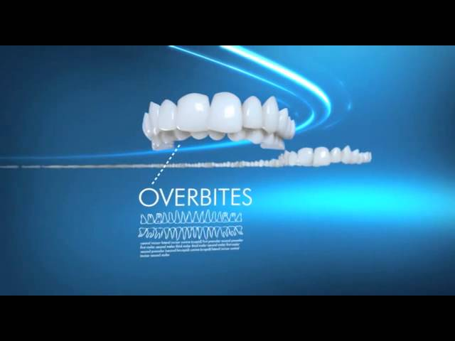 Invisalign Efficacy from Dr Terry Hopper DMD