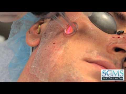 Chino Hills,CA Laser Acne Scar Removal