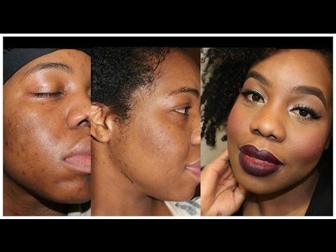 Comment eviter les cicatrices sur le visage - Dermaroller visage avis ...