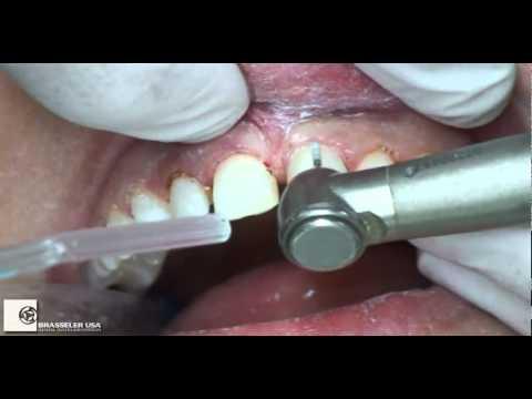 Preparation Six Maxillary Anterior Veneers by Dr. Ed McLaren