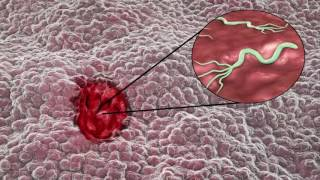 Mide kanseri belirtileri ve nedenleri