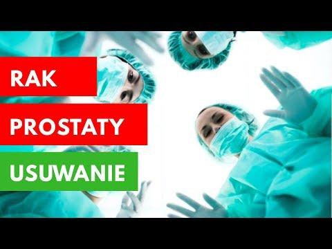 Rak Prostaty - Usuwanie Na Poziomie Fizycznym