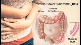 Irritable bowel syndrome IBS treatment naturally at Home | natural cures of Irritable bowel syndrome