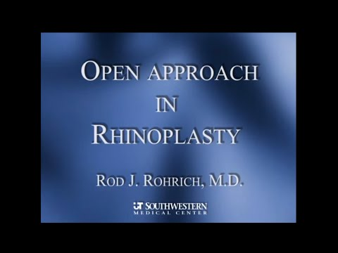 2  Open Approach Rhinoplasty
