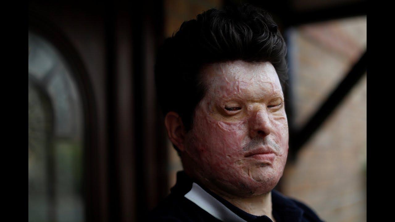 UK acid-attack survivors call for tougher sentences