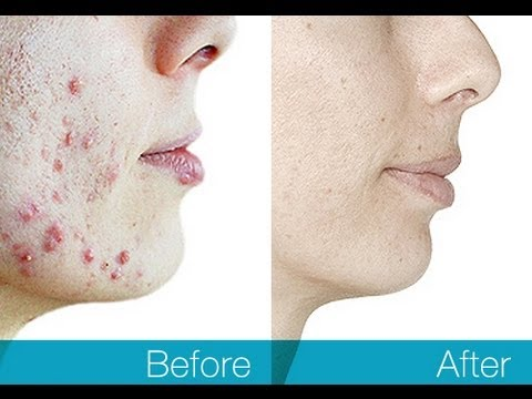 #1 Overnight Acne Cures Review