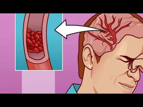 Mangel an Magnesium Sie leiden an lebensbedrohlichen Krankheiten