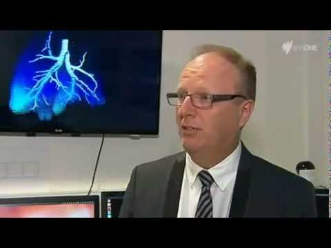 4D X-ray lung imaging technology on SBS World News