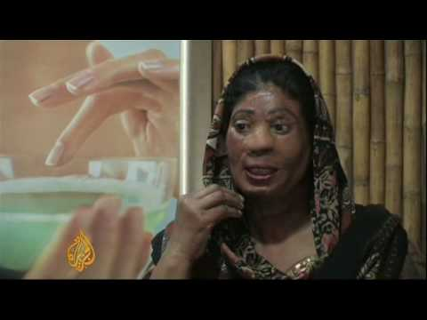 Helping Pakistan's acid attack victims