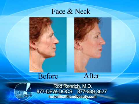 The Best in Facelifts, Dallas Texas