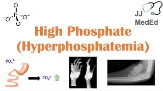 High Phosphate (Hyperphosphatemia): Dietary Sources, Causes, Symptoms, Treatment
