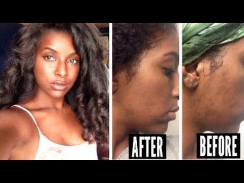 Skin Care Routine: Fade Dark Marks & Acne Scars