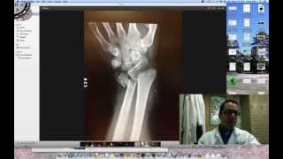 Gutter Splint Toe Boxer Splint Immobilizer For Fractures