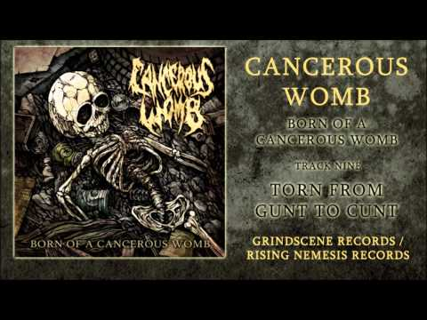 Cancerous Womb - Torn From Gunt To Cunt