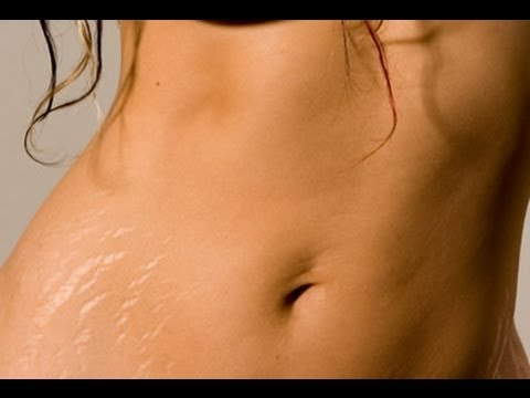 How to get rid of/treat stretch marks!!