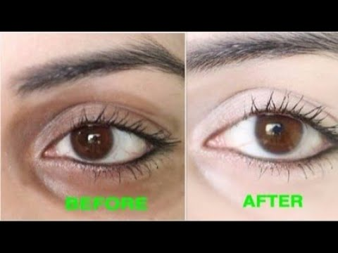 Best Eye Cream For Dark Under Eyes circles & Wrinkles  (Huge Giveaway)