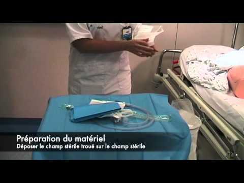 Meat Urétral Chez L'homme : Page 1/10 : All-Searches.com