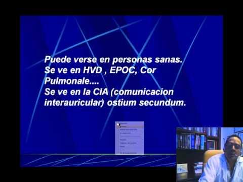 ELECTROCARDIOGRAFIA CURSO TALLER PARTE 5  BLOQUEOS DE RAMA.wmv