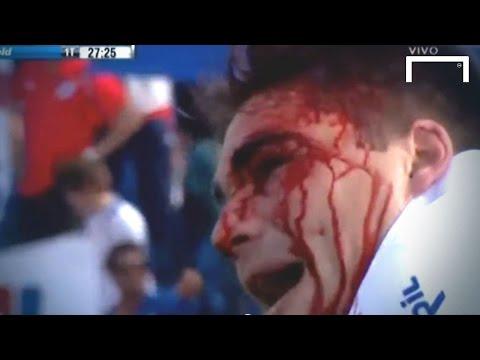 Horrific Facial Injury - Rafael Garcia